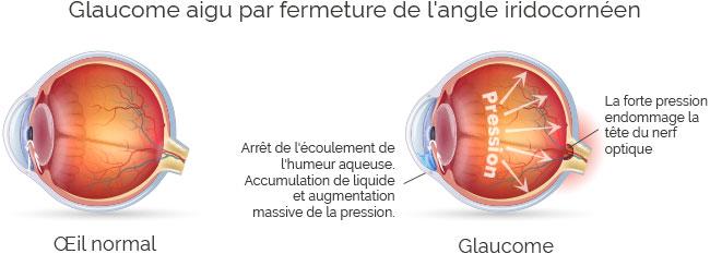 maladie des yeux : schéma du glaucome
