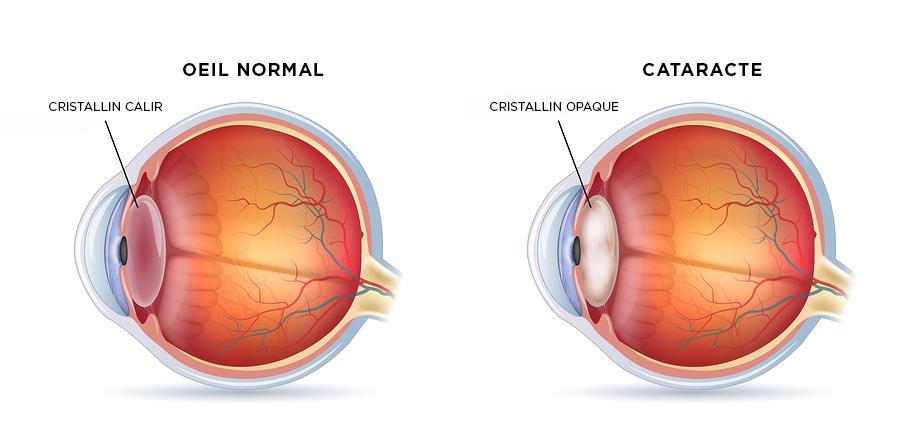 maladie des yeux : schéma de la cataracte